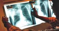 Жительницу Омской области принуждают лечиться от туберкулеза