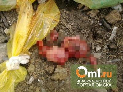 Спустя месяц свалка человеческих эмбрионов в Омске признана незаконной