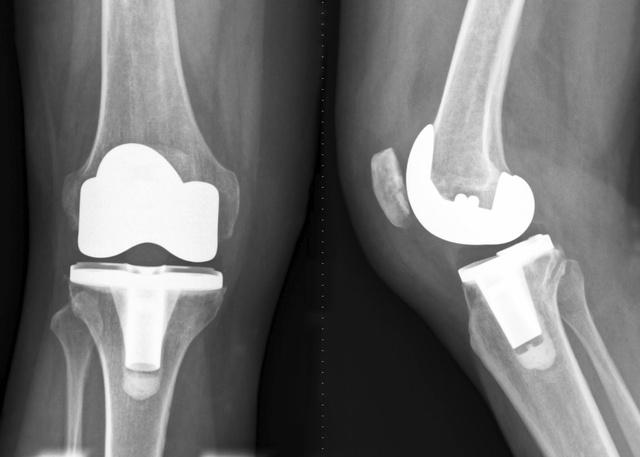 В Омской области женщина-инвалид получила протез только благодаря прокуратуре