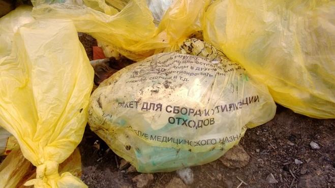 На свалке в Омской области нашли человеческую ногу